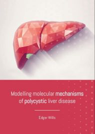 Modelling molecular mechanisms of polycystic liver disease