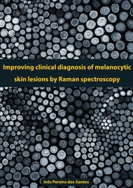 Improving Clinical Diagnosis of Melanocytic Skin Lesions by Raman Spectroscopy