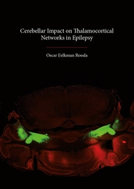 Cerebellar Impact on Thalamocortical Networks in Epilepsy