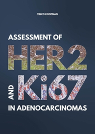 Assessment of HER2 and Ki67 in adenocarcinomas